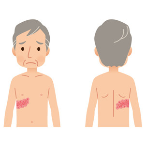 湿疹、アトピー性皮膚炎、蕁麻疹